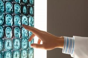 Neuro-Spinal Analysis- Holistic Back Pain Treatment