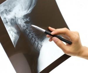 Spine-Pain-Rheumatoid-Arthritis