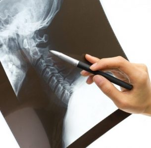 Surgical Treatment Options for Spine or Back