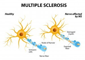Treating Spine Pain Multiple Sclerosis MS
