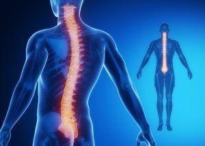 Cervical-Spine-Surgery